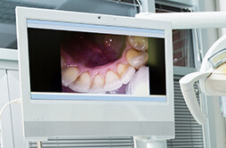 image of inside a patient's mouth, captured by intraoral camera