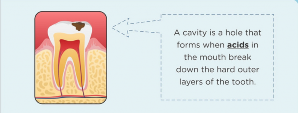 Illustration of Cavity Filling